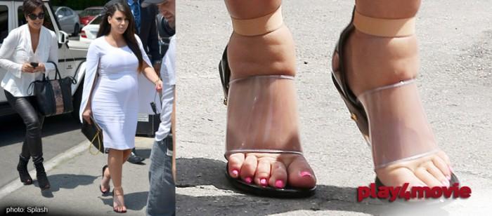 Kim Kardashian swollen feet-2